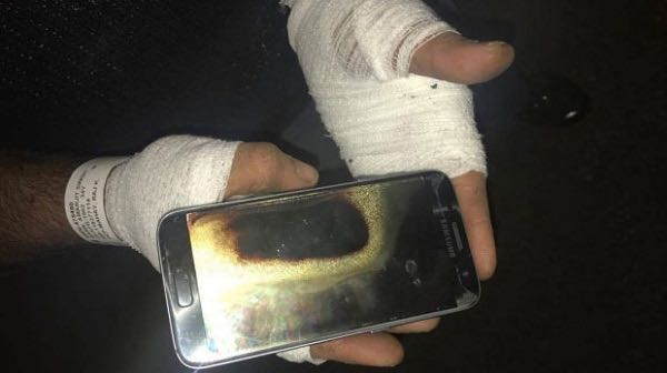 Samsung Galaxy S7 burn 2